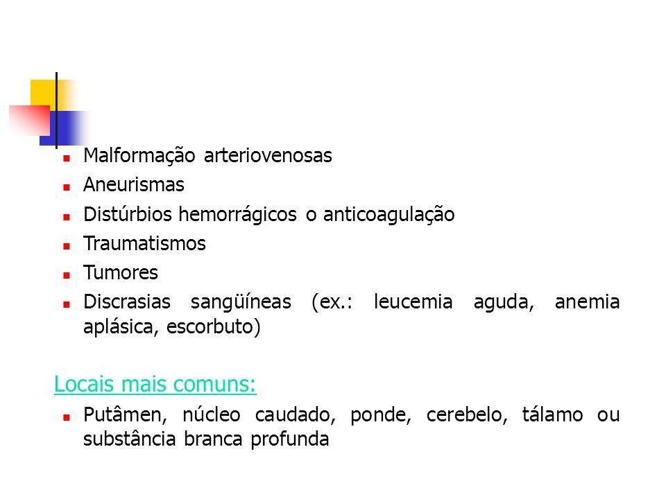 Malformação arteriovenosas Aneurismas Distúrbios hemorrágicos o anticoagulação Traumatismos Tumores Discrasias sangüíneas (ex.: leucemia aguda, anemia