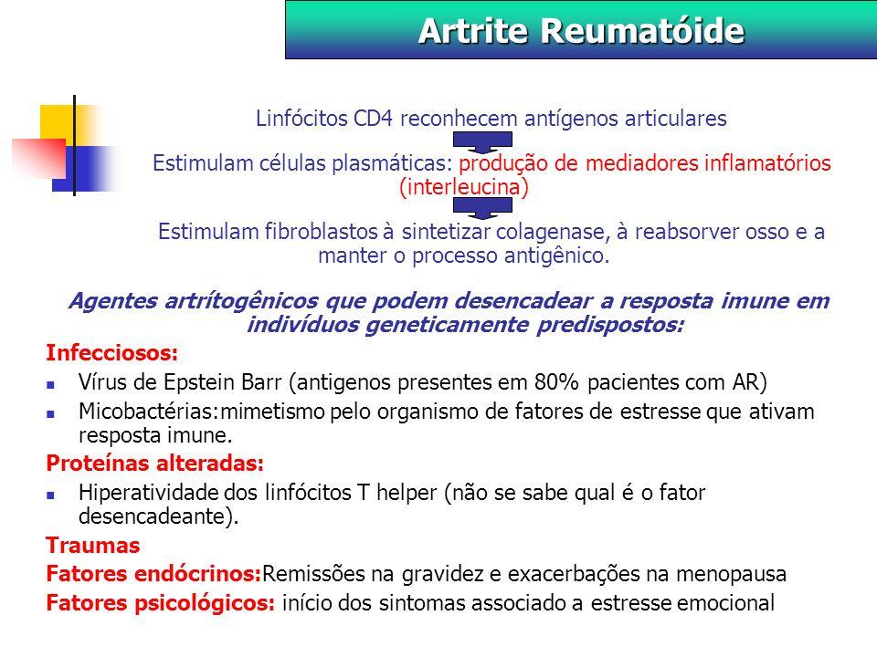 Sinovite: Fase de exsudação: edema na cartilagem articular e derrame intra- articular.