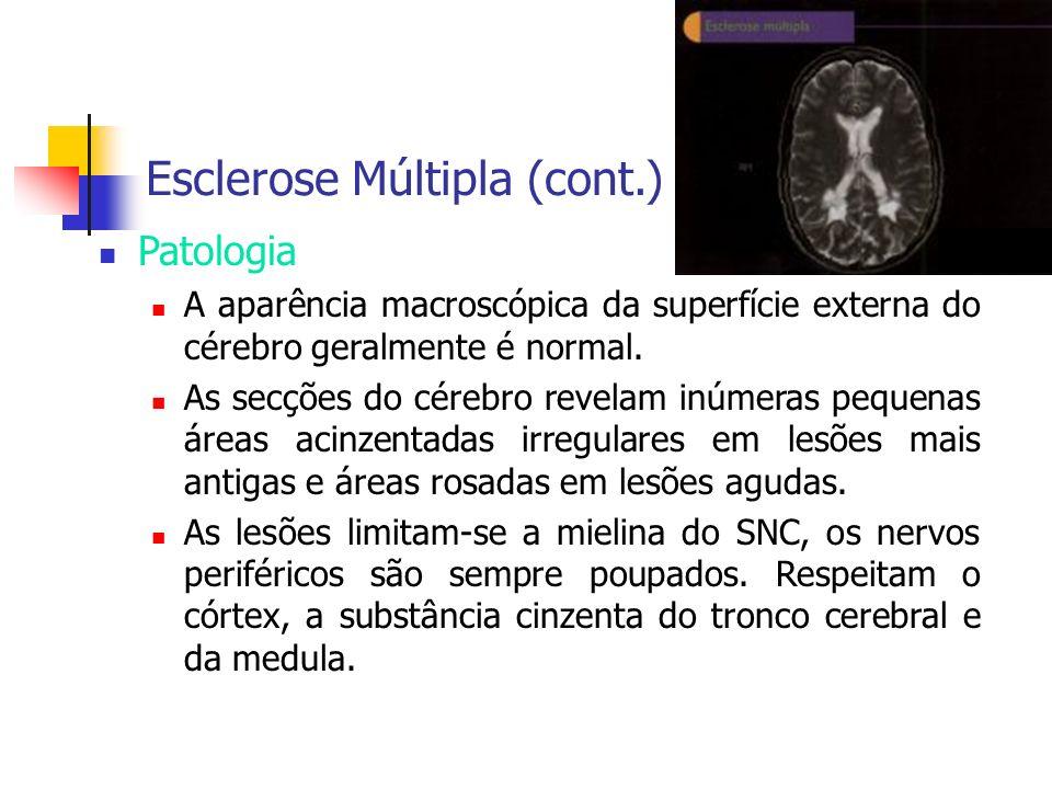 Esclerose Múltipla (cont.) Patologia A aparência macroscópica da superfície externa do cérebro geralmente é normal. As secções do cérebro revelam inúm