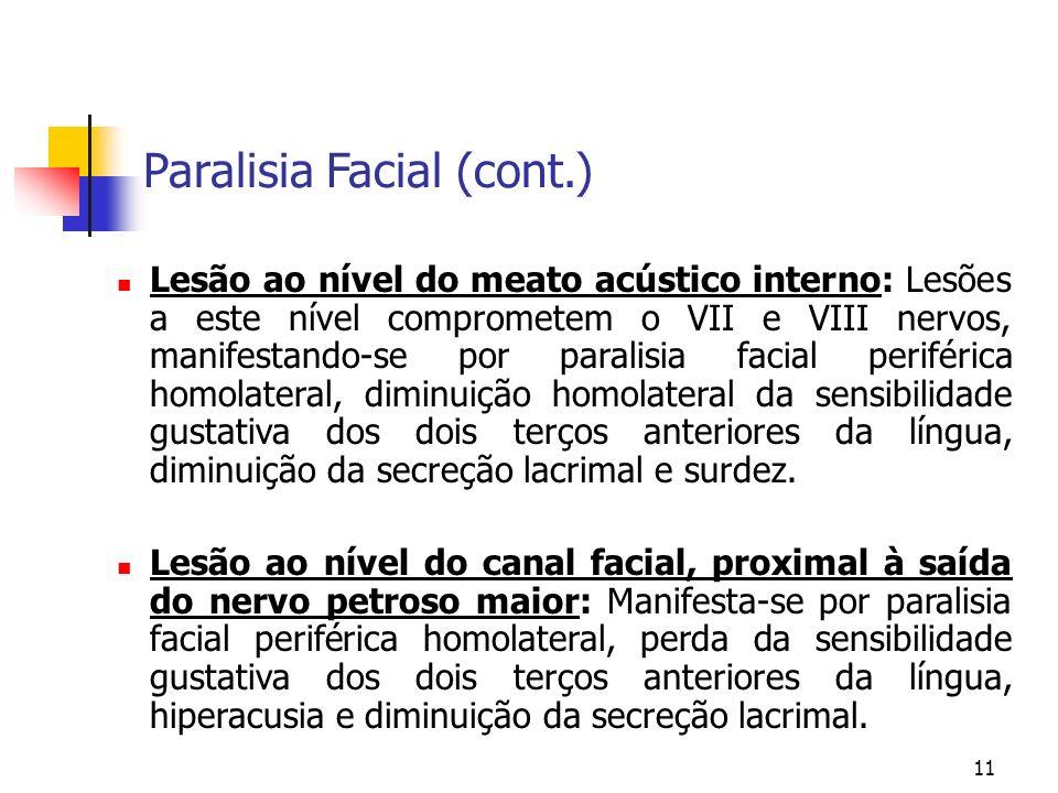 11 Lesão ao nível do meato acústico interno: Lesões a este nível comprometem o VII e VIII nervos, manifestando-se por paralisia facial periférica homo