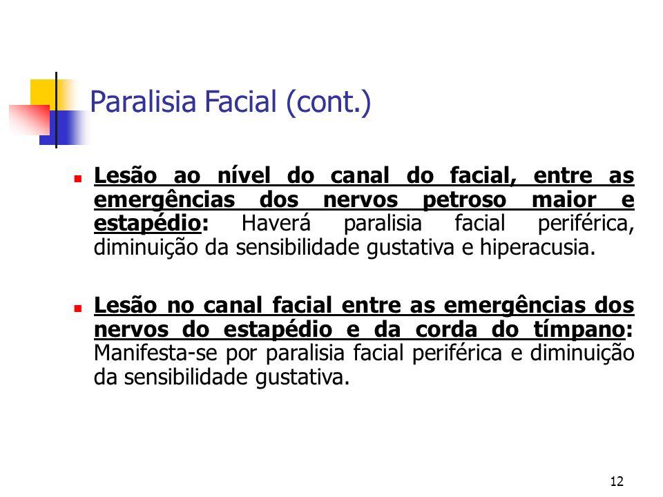 12 Lesão ao nível do canal do facial, entre as emergências dos nervos petroso maior e estapédio: Haverá paralisia facial periférica, diminuição da sen