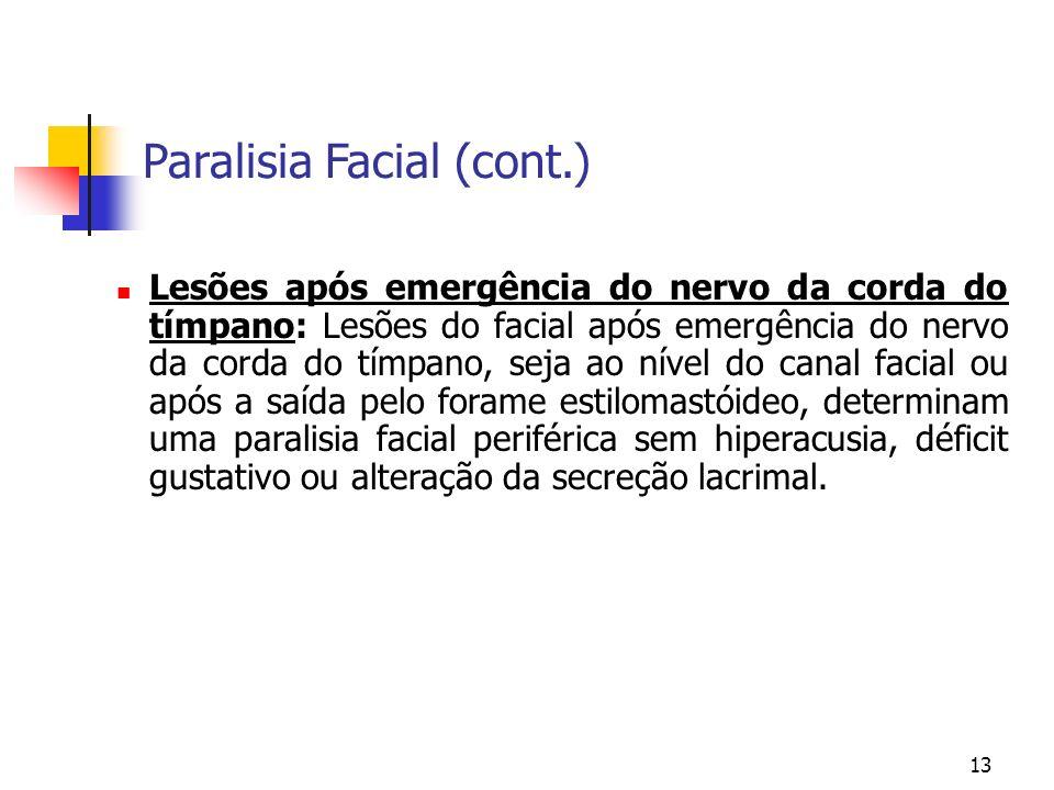 13 Lesões após emergência do nervo da corda do tímpano: Lesões do facial após emergência do nervo da corda do tímpano, seja ao nível do canal facial o