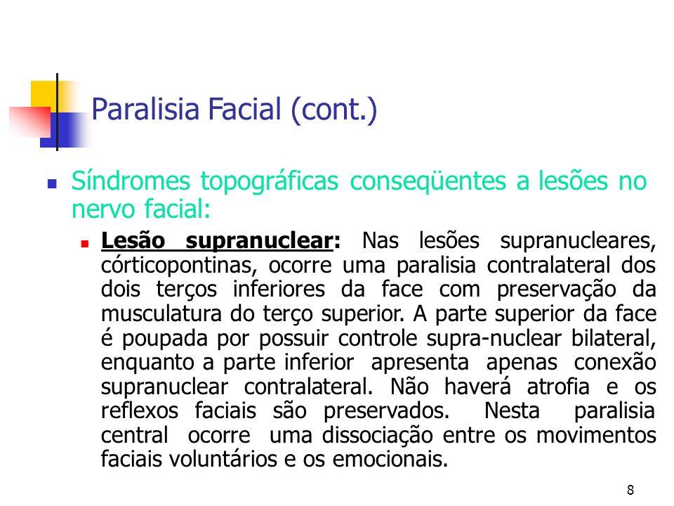 8 Síndromes topográficas conseqüentes a lesões no nervo facial: Lesão supranuclear: Nas lesões supranucleares, córticopontinas, ocorre uma paralisia