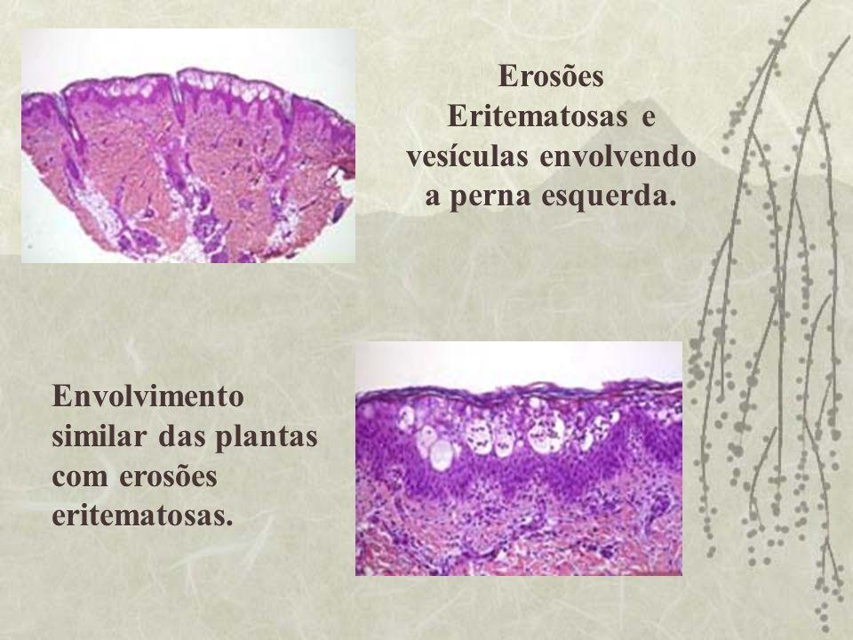 Erosões Eritematosas e vesículas envolvendo a perna esquerda. Envolvimento similar das plantas com erosões eritematosas.