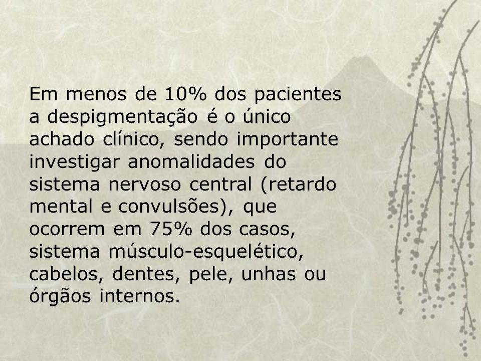 Em menos de 10% dos pacientes a despigmentação é o único achado clínico, sendo importante investigar anomalidades do sistema nervoso central (retardo