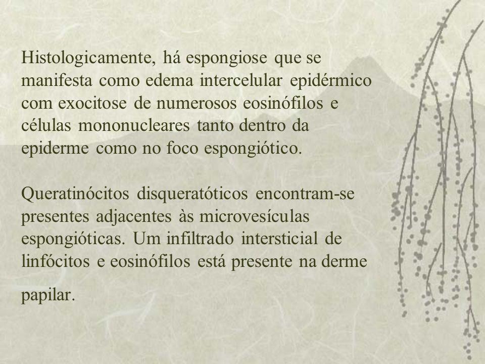 Histologicamente, há espongiose que se manifesta como edema intercelular epidérmico com exocitose de numerosos eosinófilos e células mononucleares tan
