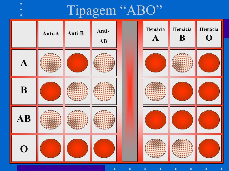 Tipagem ABO Anti-B Anti-A Anti- AB A B O Hemácia A Hemácia B Hemácia O