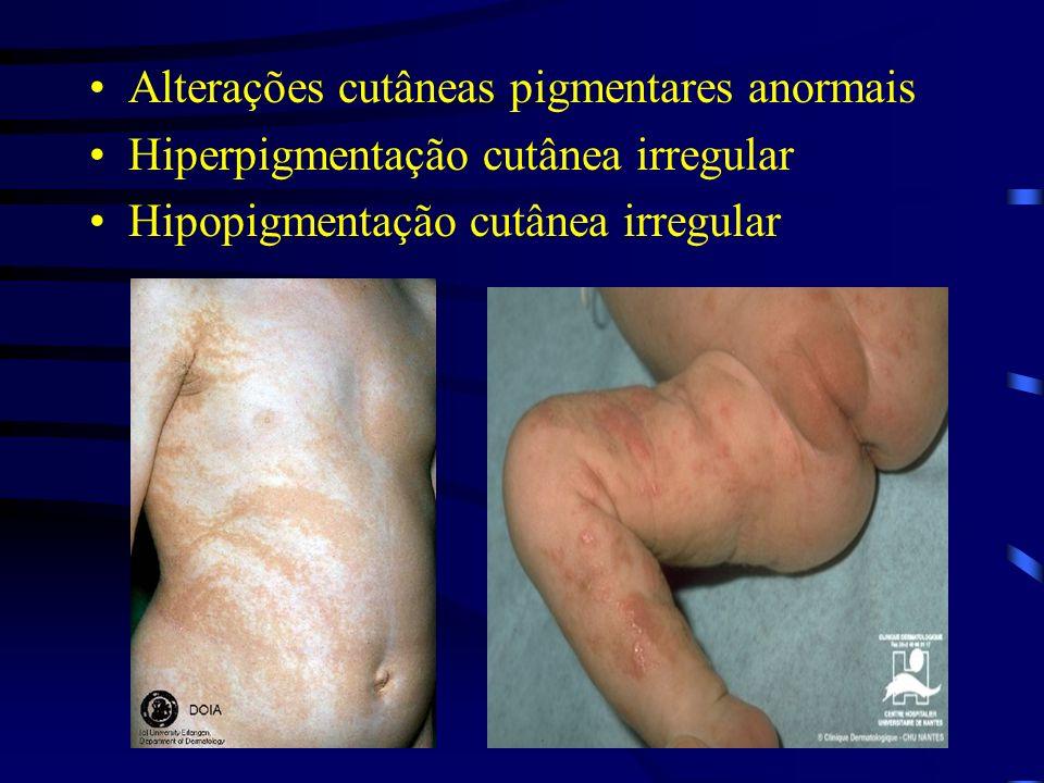 Alterações cutâneas pigmentares anormais Hiperpigmentação cutânea irregular Hipopigmentação cutânea irregular