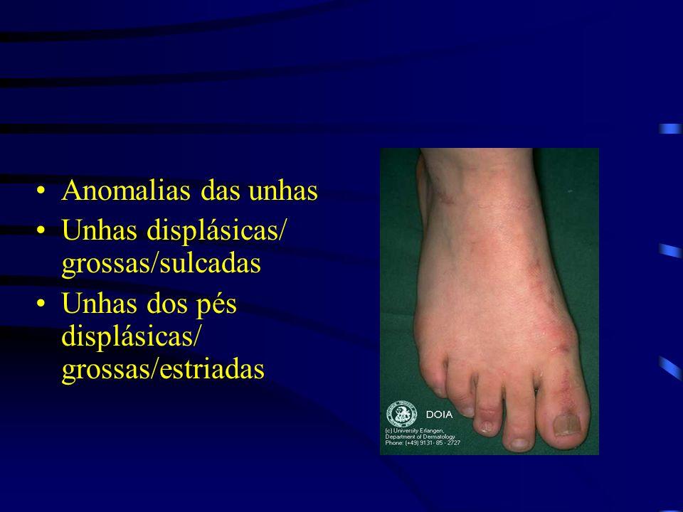 Anomalias das unhas Unhas displásicas/ grossas/sulcadas Unhas dos pés displásicas/ grossas/estriadas