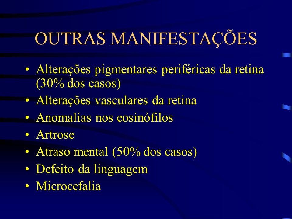 OUTRAS MANIFESTAÇÕES Alterações pigmentares periféricas da retina (30% dos casos) Alterações vasculares da retina Anomalias nos eosinófilos Artrose At