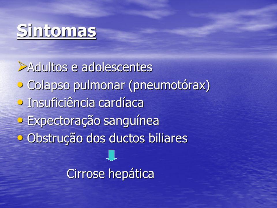 Sintomas Adultos e adolescentes Adultos e adolescentes Colapso pulmonar (pneumotórax) Colapso pulmonar (pneumotórax) Insuficiência cardíaca Insuficiên