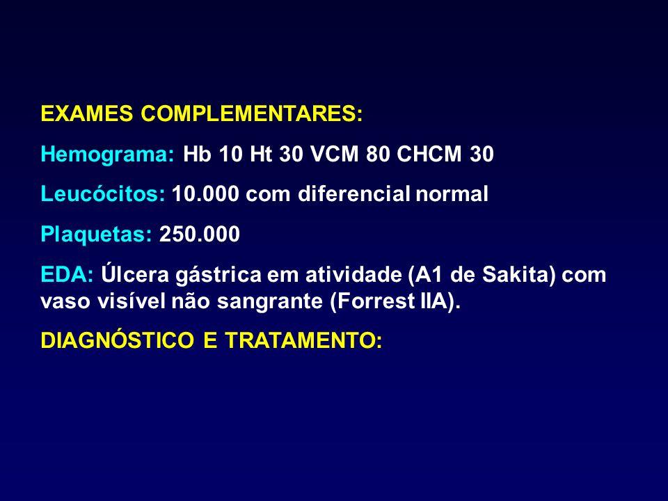 EXAMES COMPLEMENTARES: Hemograma: Hb 10 Ht 30 VCM 80 CHCM 30 Leucócitos: 10.000 com diferencial normal Plaquetas: 250.000 EDA: Úlcera gástrica em ativ