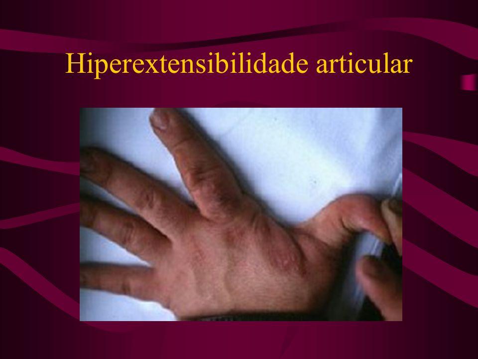 Hiperextensibilidade articular