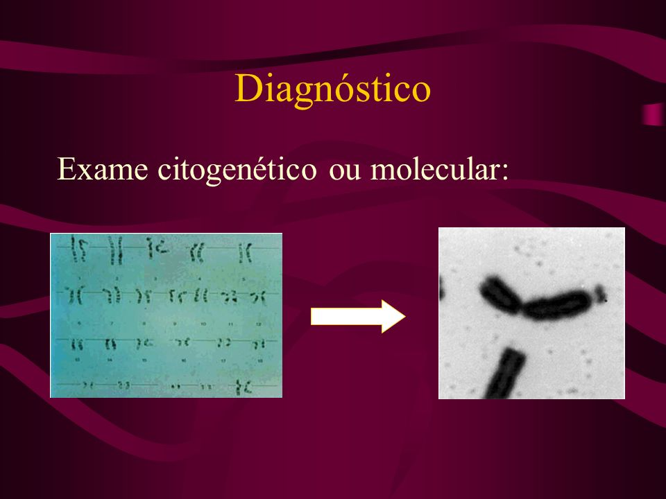Diagnóstico Exame citogenético ou molecular: