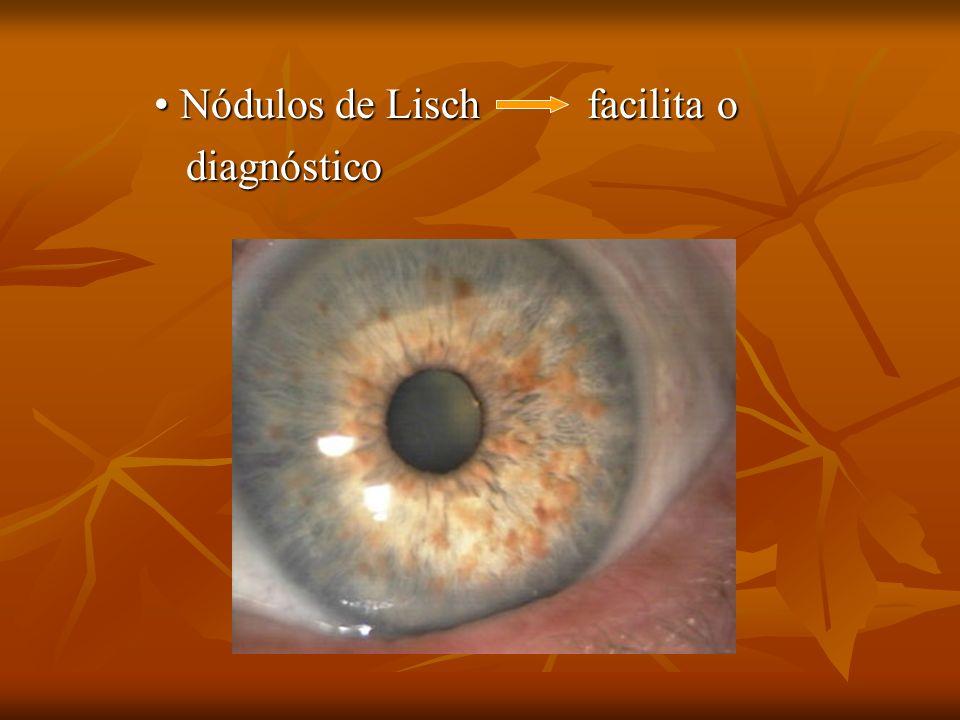 Nódulos de Lisch facilita o Nódulos de Lisch facilita o diagnóstico diagnóstico