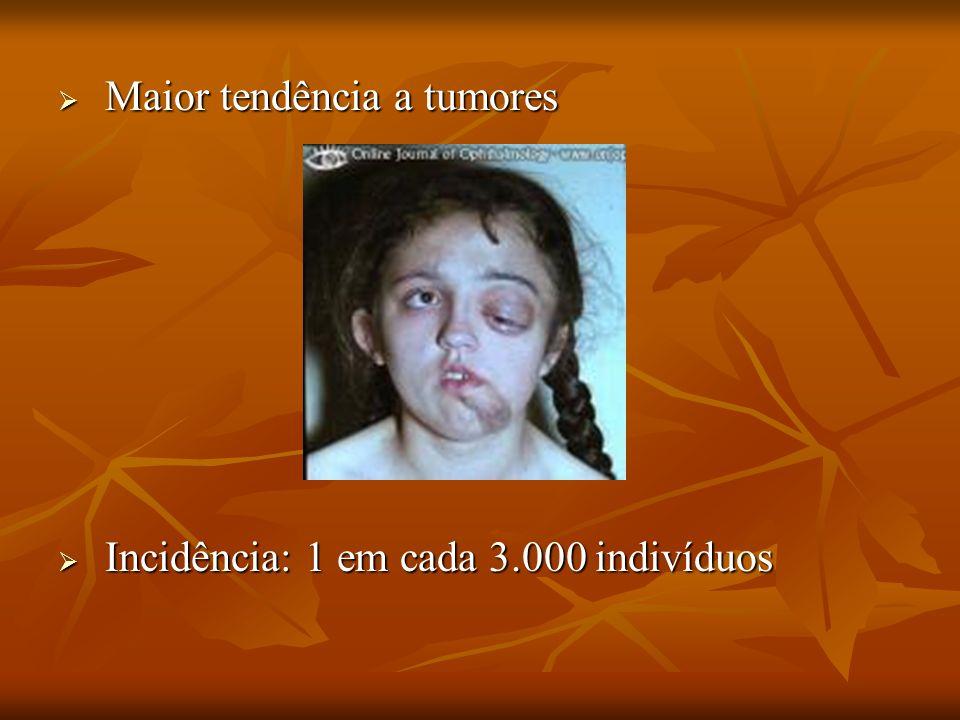 Maior tendência a tumores Maior tendência a tumores Incidência: 1 em cada 3.000 indivíduos Incidência: 1 em cada 3.000 indivíduos