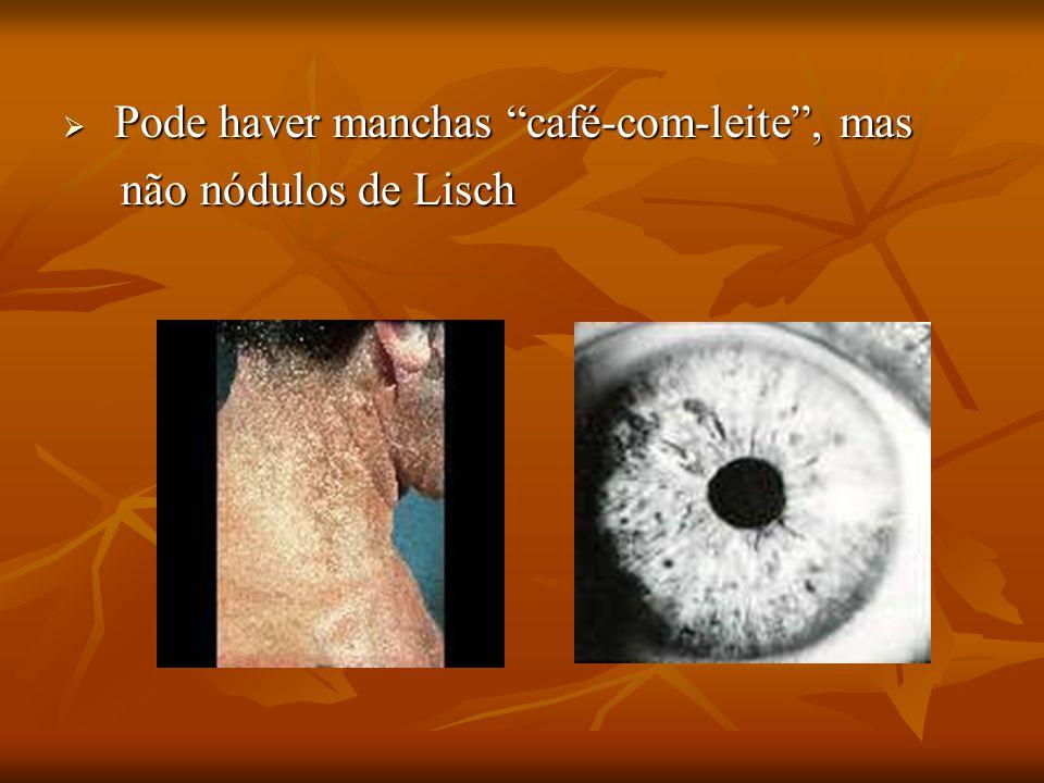 Pode haver manchas café-com-leite, mas Pode haver manchas café-com-leite, mas não nódulos de Lisch não nódulos de Lisch