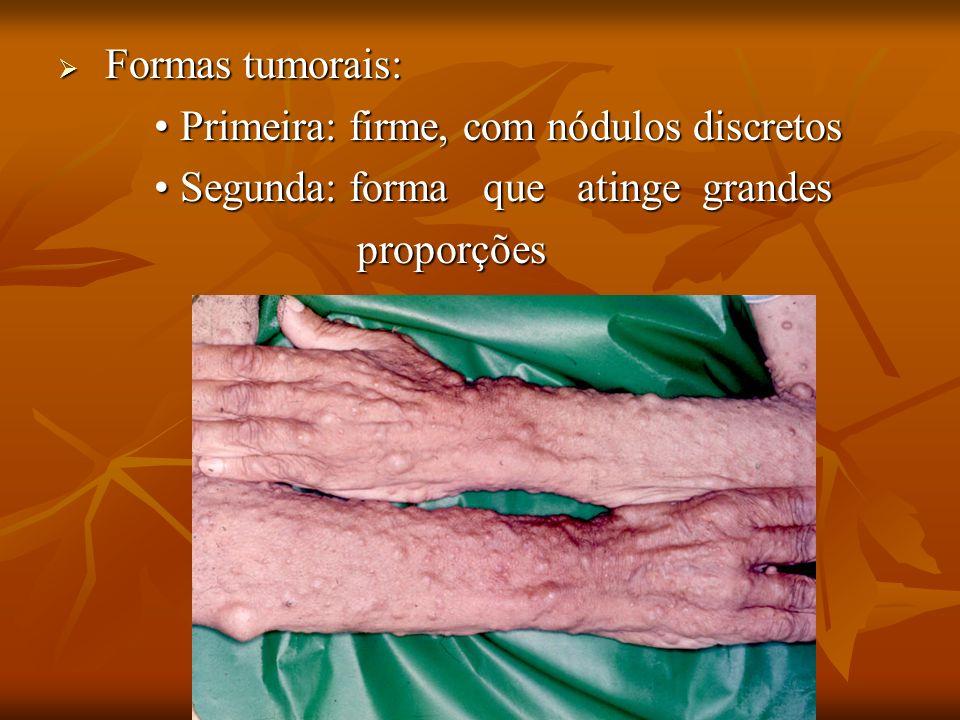 Formas tumorais: Formas tumorais: Primeira: firme, com nódulos discretos Primeira: firme, com nódulos discretos Segunda: forma que atinge grandes Segu