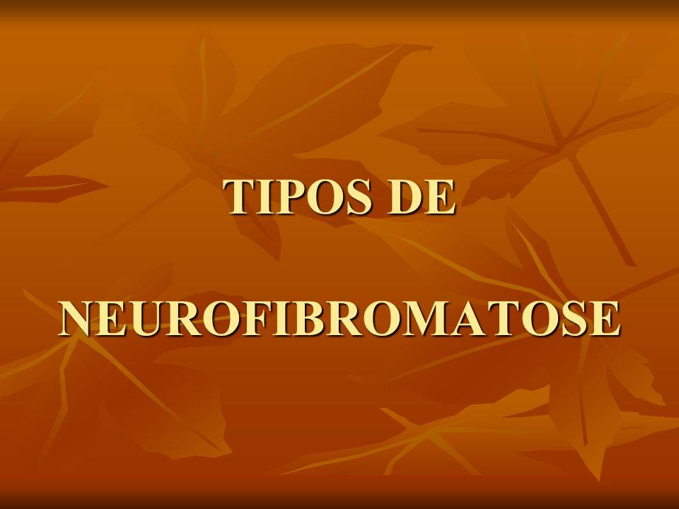 TIPOS DE NEUROFIBROMATOSE