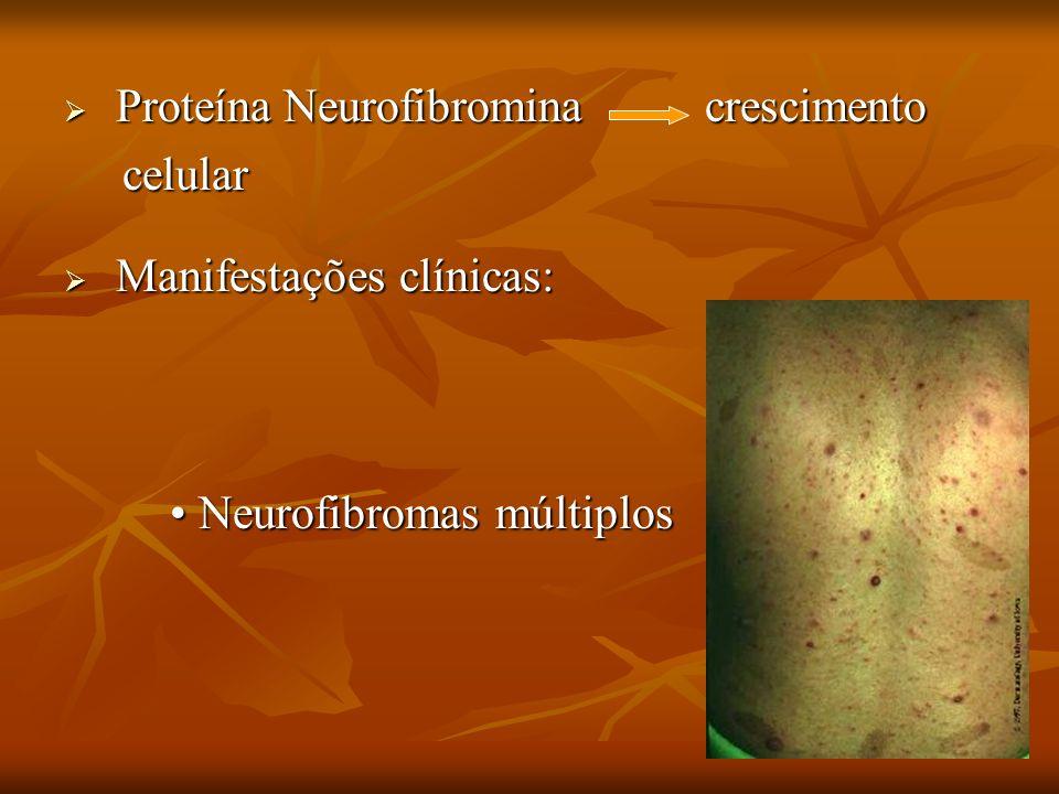 Proteína Neurofibromina crescimento Proteína Neurofibromina crescimento celular celular Manifestações clínicas: Manifestações clínicas: Neurofibromas