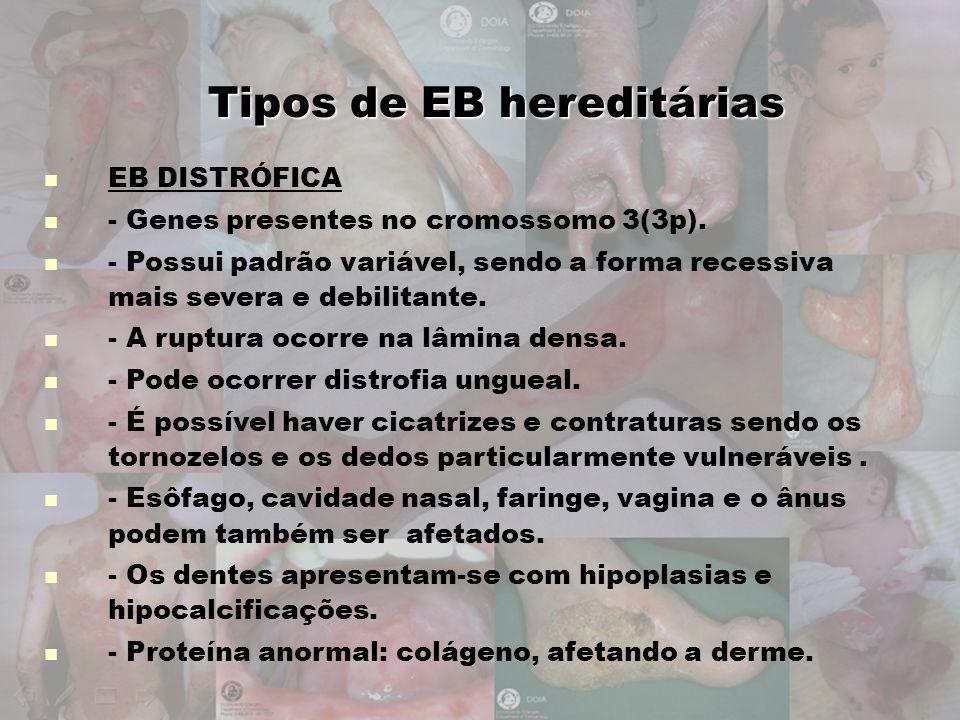 Tipos de EB hereditárias EB DISTRÓFICA - Genes presentes no cromossomo 3(3p). - Possui padrão variável, sendo a forma recessiva mais severa e debilita