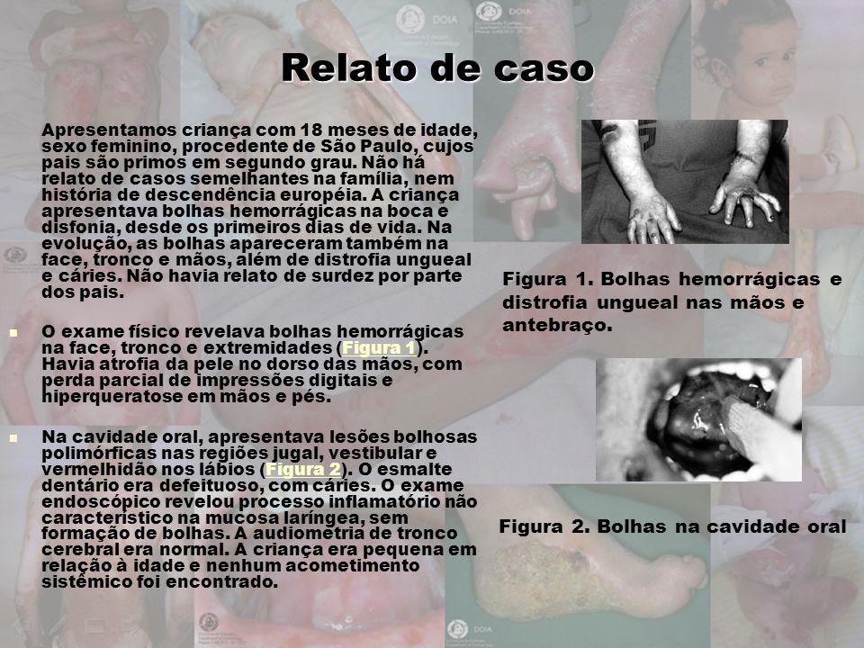 Figura 1. Bolhas hemorrágicas e distrofia ungueal nas mãos e antebraço. Figura 2. Bolhas na cavidade oral Relato de caso Apresentamos criança com 18 m
