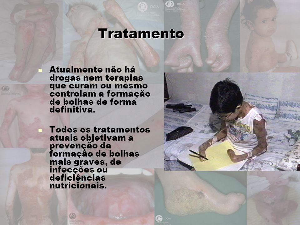 Tratamento Atualmente não há drogas nem terapias que curam ou mesmo controlam a formação de bolhas de forma definitiva. Todos os tratamentos atuais ob