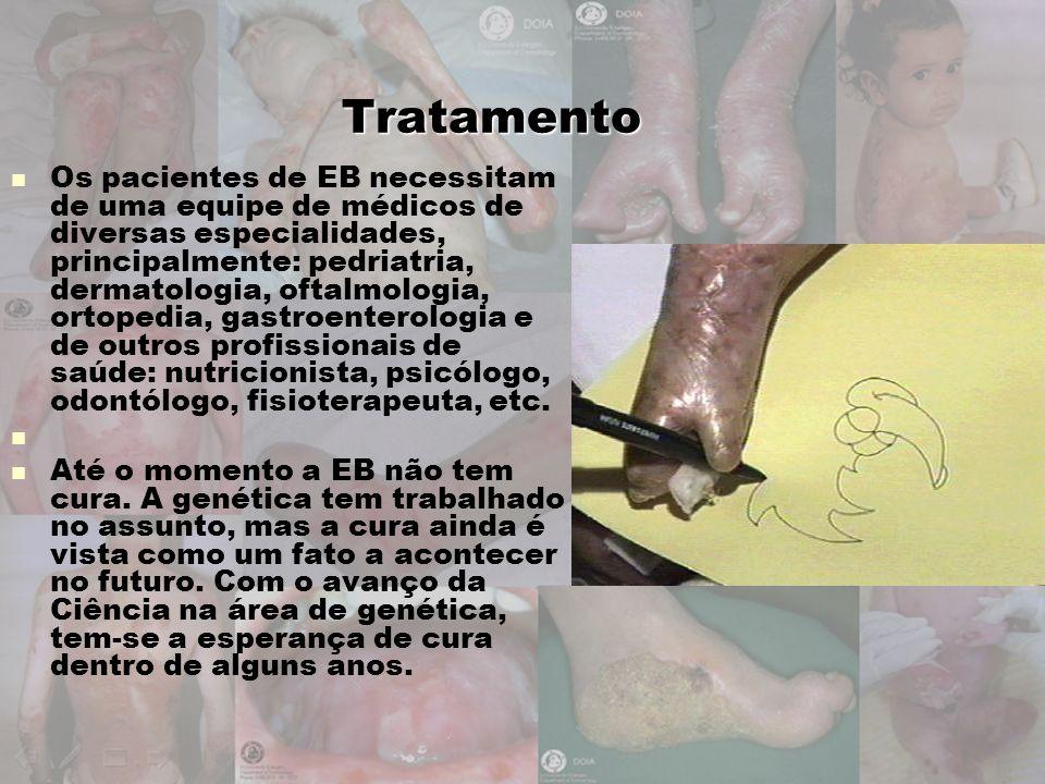 Tratamento Os pacientes de EB necessitam de uma equipe de médicos de diversas especialidades, principalmente: pedriatria, dermatologia, oftalmologia,