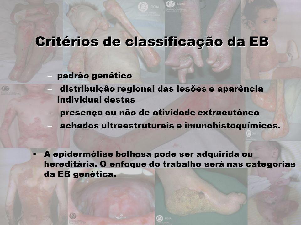 Critérios de classificação da EB –padrão genético – distribuição regional das lesões e aparência individual destas – presença ou não de atividade extr