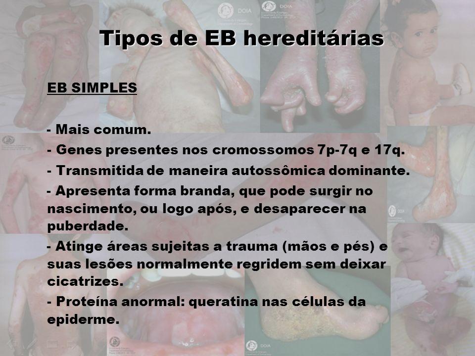 Tipos de EB hereditárias EB SIMPLES - Mais comum. - Genes presentes nos cromossomos 7p-7q e 17q. - Transmitida de maneira autossômica dominante. - Apr