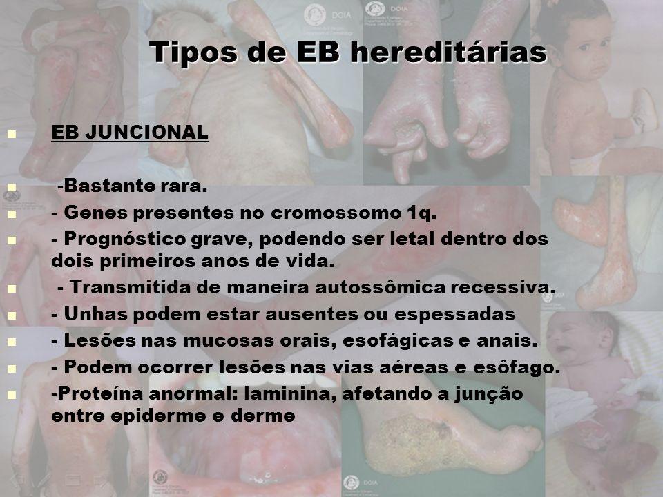 Tipos de EB hereditárias EB JUNCIONAL -Bastante rara. - Genes presentes no cromossomo 1q. - Prognóstico grave, podendo ser letal dentro dos dois prime