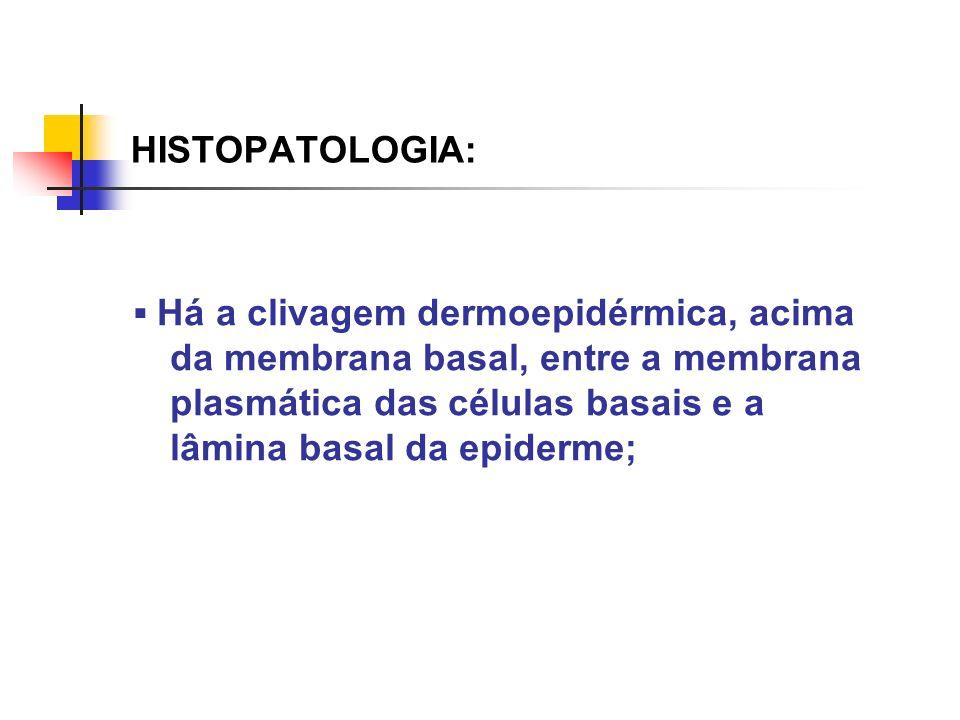 HISTOPATOLOGIA: Há a clivagem dermoepidérmica, acima da membrana basal, entre a membrana plasmática das células basais e a lâmina basal da epiderme;