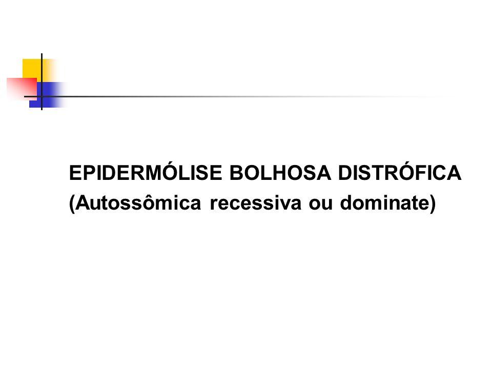 EPIDERMÓLISE BOLHOSA DISTRÓFICA (Autossômica recessiva ou dominate)