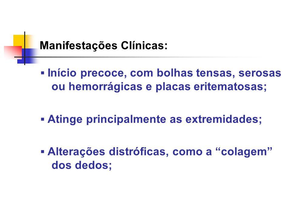 Manifestações Clínicas: Início precoce, com bolhas tensas, serosas ou hemorrágicas e placas eritematosas; Atinge principalmente as extremidades; Alter