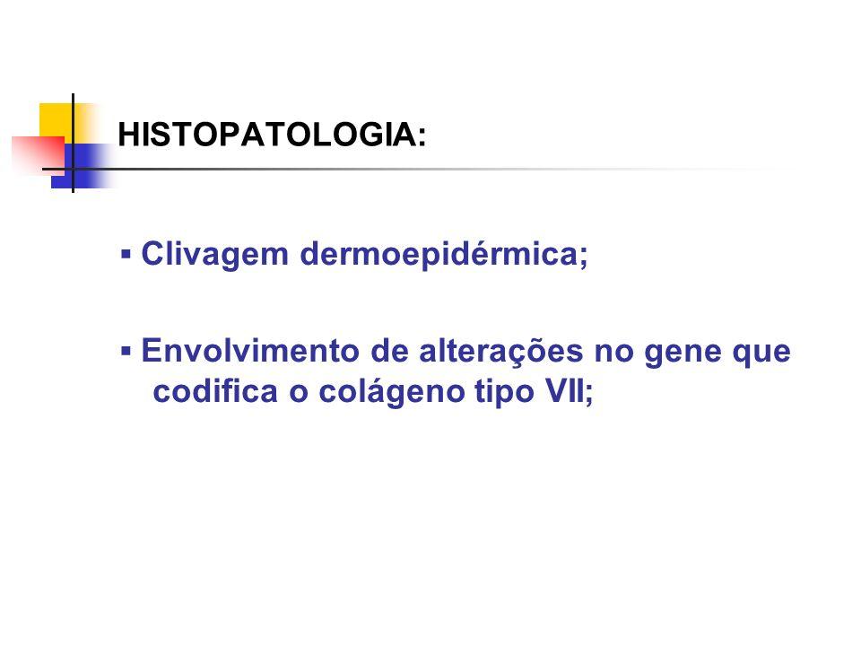 HISTOPATOLOGIA: Clivagem dermoepidérmica; Envolvimento de alterações no gene que codifica o colágeno tipo VII;