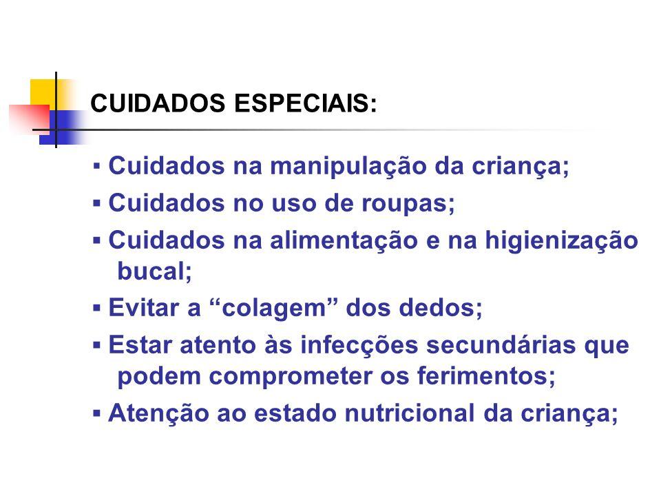 CUIDADOS ESPECIAIS: Cuidados na manipulação da criança; Cuidados no uso de roupas; Cuidados na alimentação e na higienização bucal; Evitar a colagem d