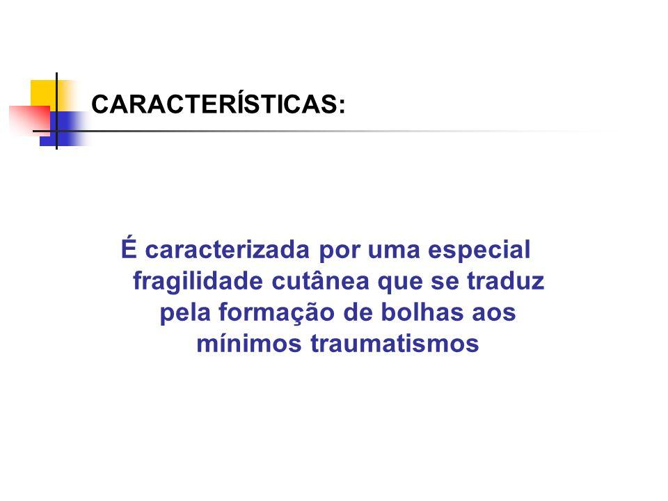 CARACTERÍSTICAS: É caracterizada por uma especial fragilidade cutânea que se traduz pela formação de bolhas aos mínimos traumatismos