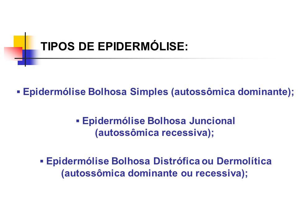 TIPOS DE EPIDERMÓLISE: Epidermólise Bolhosa Simples (autossômica dominante); Epidermólise Bolhosa Juncional (autossômica recessiva); Epidermólise Bolh