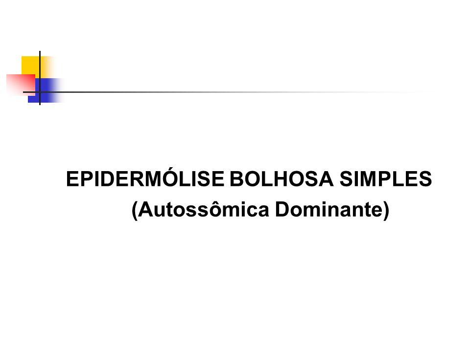 EPIDERMÓLISE BOLHOSA SIMPLES (Autossômica Dominante)