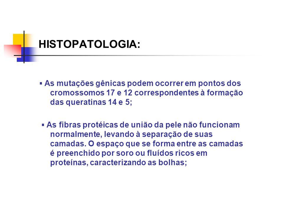 HISTOPATOLOGIA: As mutações gênicas podem ocorrer em pontos dos cromossomos 17 e 12 correspondentes à formação das queratinas 14 e 5; As fibras protéi