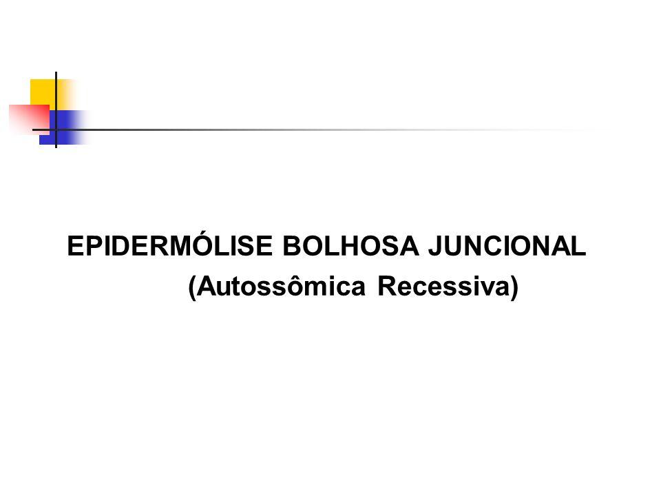 EPIDERMÓLISE BOLHOSA JUNCIONAL (Autossômica Recessiva)