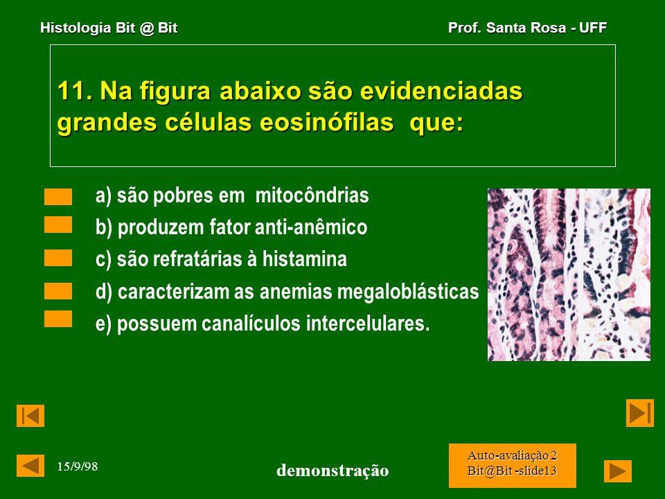 Histologia Bit @ Bit Prof. Santa Rosa - UFF 15/9/98 demonstração Auto-avaliação 2 Bit@Bit -slide12 10. A melanina é encontrada mais abundantemente em: