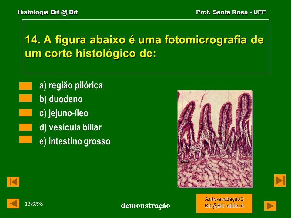 Histologia Bit @ Bit Prof. Santa Rosa - UFF 15/9/98 demonstração Auto-avaliação 2 Bit@Bit -slide15 13. Os triglicerídios de cadeia curta, depois de ab