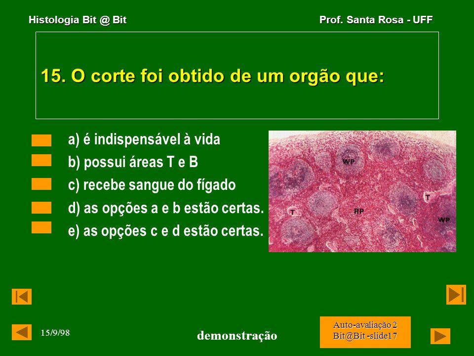Histologia Bit @ Bit Prof. Santa Rosa - UFF 15/9/98 demonstração Auto-avaliação 2 Bit@Bit -slide16 14. A figura abaixo é uma fotomicrografia de um cor