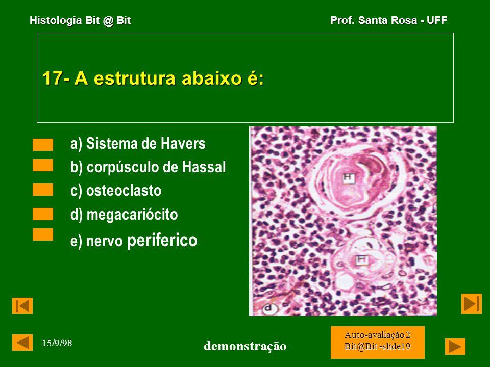 Histologia Bit @ Bit Prof. Santa Rosa - UFF 15/9/98 demonstração Auto-avaliação 2 Bit@Bit -slide18 16- E propriedade dos basófilos: a) presença de grâ