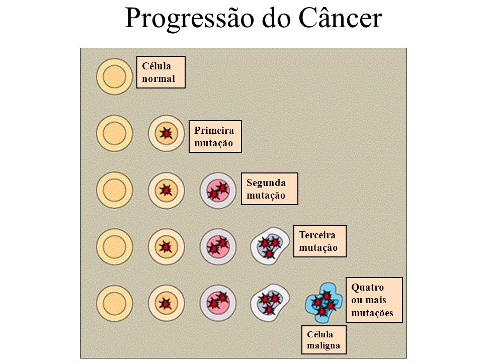 Célula normal Primeira mutação Segunda mutação Terceira mutação Quatro ou mais mutações Célula maligna Progressão do Câncer