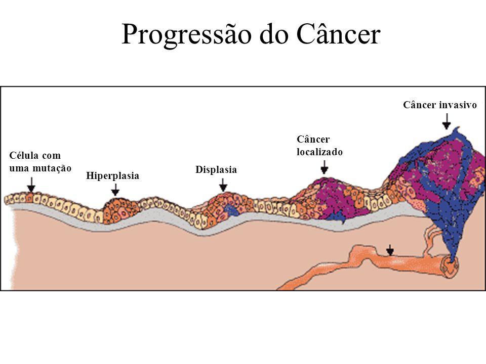 Célula com uma mutação Hiperplasia Displasia Câncer localizado Câncer invasivo