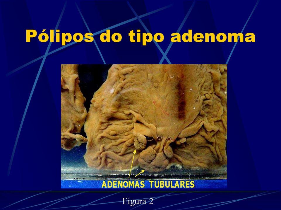 Pólipos do tipo adenoma Figura 2