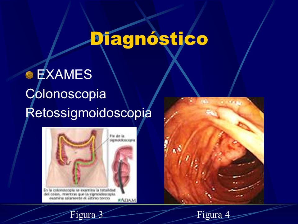 Diagnóstico EXAMES Colonoscopia Retossigmoidoscopia Figura 3 Figura 4