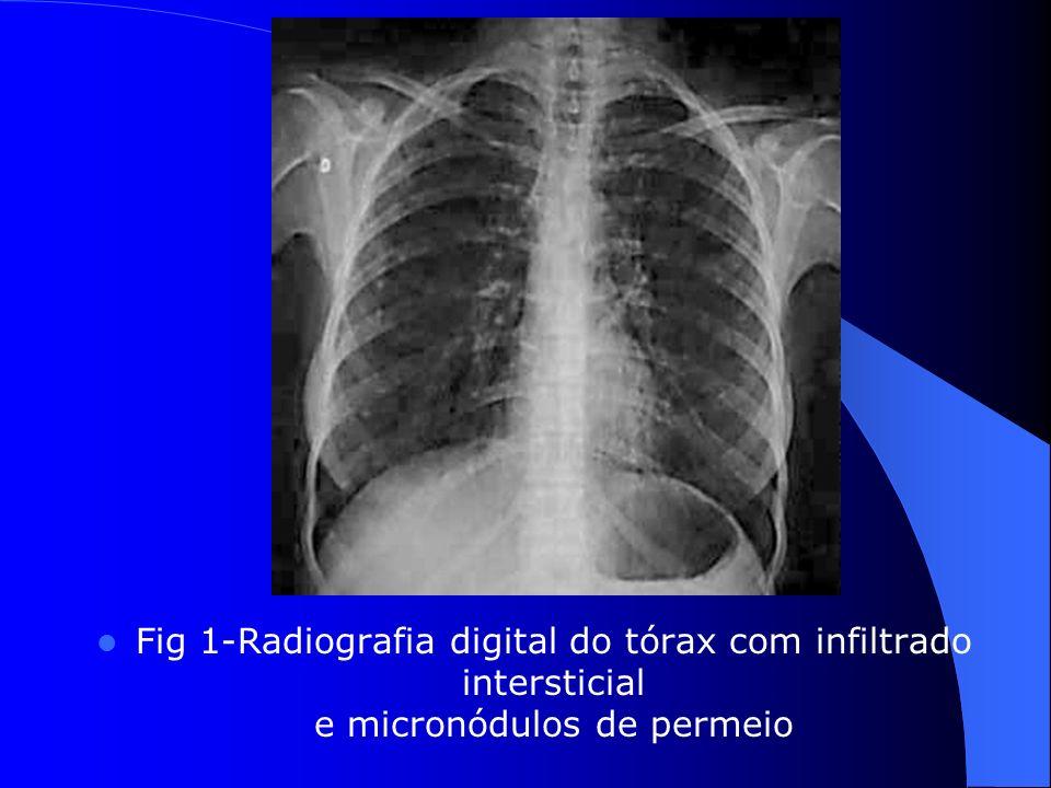 Fig 1-Radiografia digital do tórax com infiltrado intersticial e micronódulos de permeio
